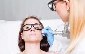 レーザー 皮膚科 レーザー治療